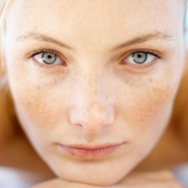 Пигментные пятна на лице лечение у детей