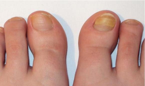 Грибок на ноготь на большом пальце ноги