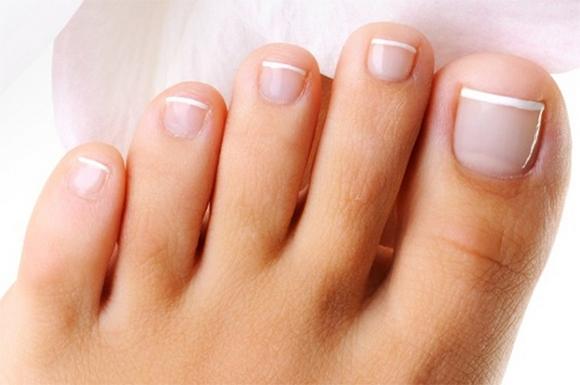 Грибковые поражения стоп и ногтей лечение