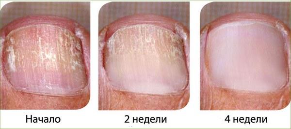 Выявляем признаки грибка на ногтях ног