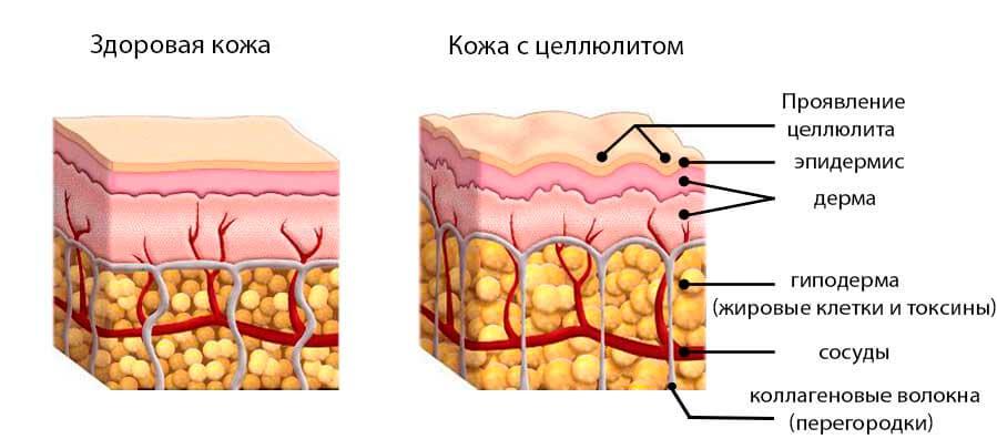Механизм возникновения целлюлита