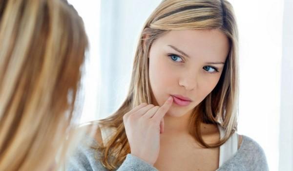 Лечение заедов в уголках рта