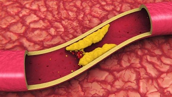 Чистка сосудов и освобождение их от холестерина народными средствами