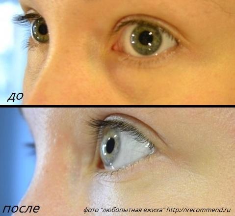 Фото до и после трансконъюнктивальной блефаропластики нижних век