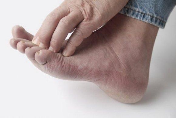 Фото грибка стопы, симптомы и лечение