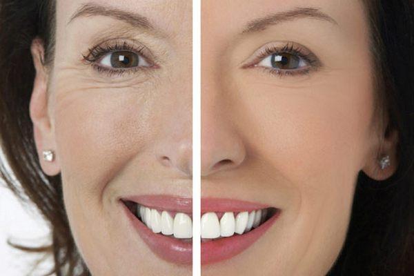 Эффект микротоков для лица