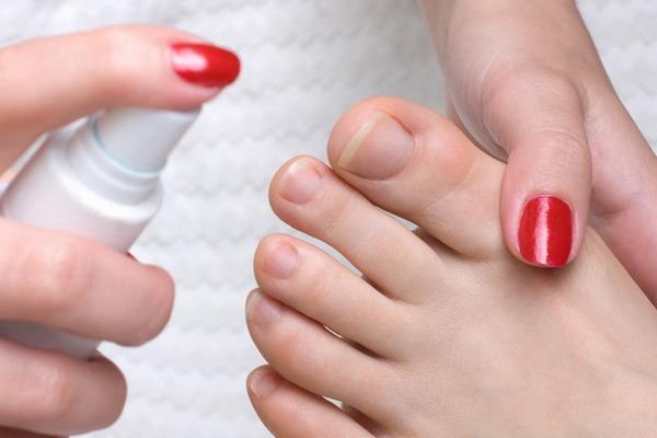 Лечение грибка ногтей в томске - О грибке ногтей