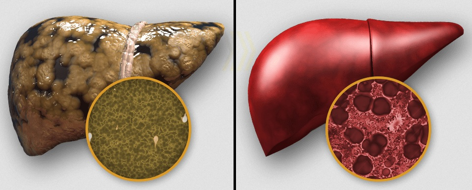 liver disease hepatitis c essay Essay tags case 1 liver disease viral hepatitis mrs rk is a 65 year old woman admitted to hospital with upper right quadrant pain, having suffered bouts of vomiting and nausea over the last 5 days.