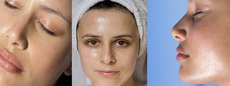признаки жирной кожи